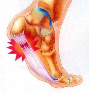 foot_plantar_fasciitis